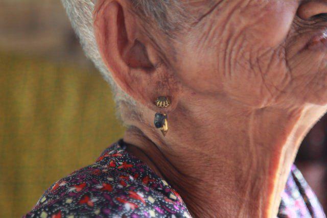Come i rumori troppo forti causano la perdita dell'udito